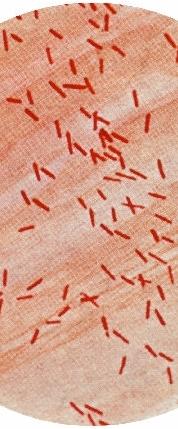 E. coli gram stain